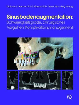 Купить Sinusbodenaugmentation