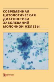 Современная цитологическая диагностика заболеваний молочной железы