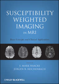 Susceptibility Weighted Imaging in MRI. Basic Concepts and Clinical Applications