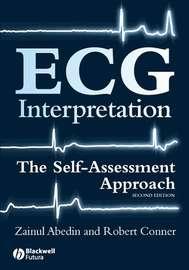 ECG Interpretation
